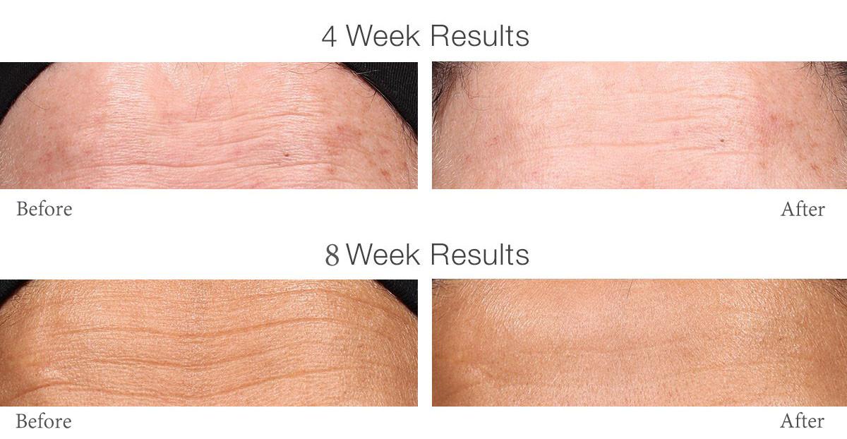 Retinol before and after - retinol night cream