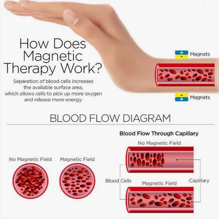 Magnetic Bracelets for Arthritis Pain