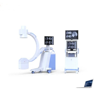 Medical Equipment High Frequency Mobile Digital C-Arm X-ray Machine