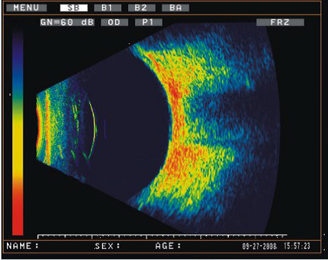 ODM-2200 ULTRASONIC A/B SCANNER FOR OPHTHALMOLOGY