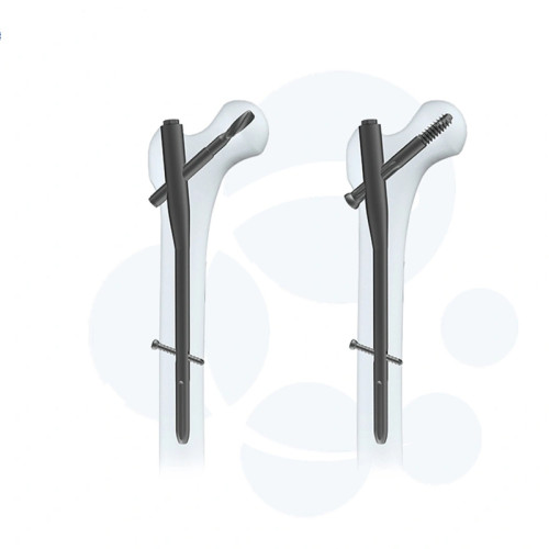 End Cap of Lag Screw for Femoral Nail Names of Medical Instruments