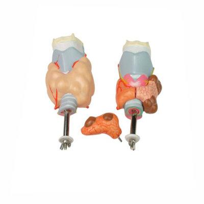 Human Larynx Anatomical Model Thyroid Pathological Model, human pharyngeal pathology detachable throat anatomical model